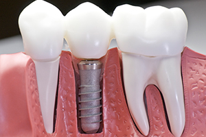 Advantages of titanium dental implants Glendale