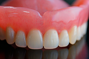 Can I Have New Dentures on My Old Dental Implants? Glendale Dentist Explains