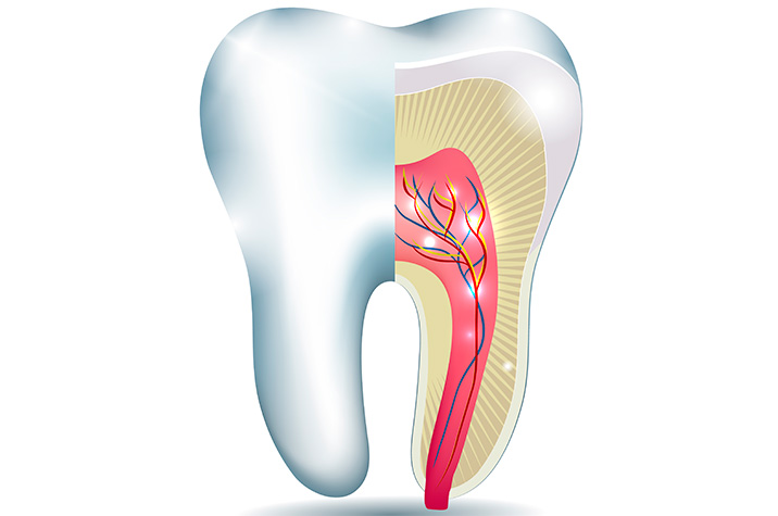 Root Canal Treatment Glendale