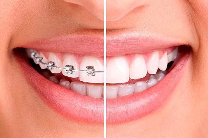 Invisalign Vs. Braces: Which Is Better?