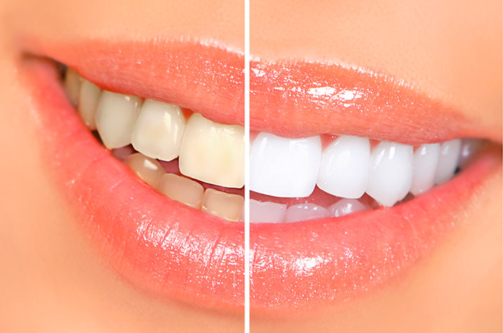 Teeth Whitening Glendale