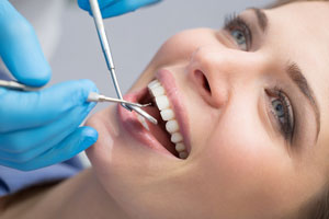 The Truth about Dental Cleaning