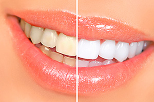 Can teeth whitening harm existing dental restorations