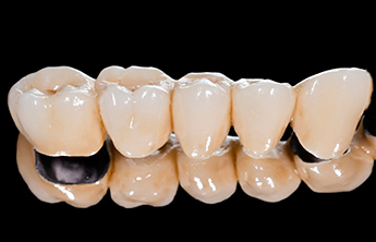 Dental Bridges glendale