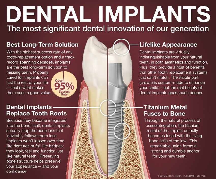 dental implants glendale