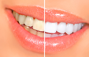 Tooth Whitening Glendale