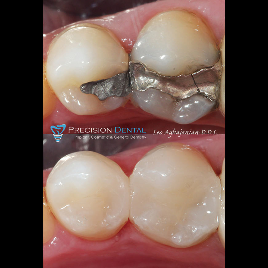 Smile Gallery, Before And After Dental Cases By Dentist