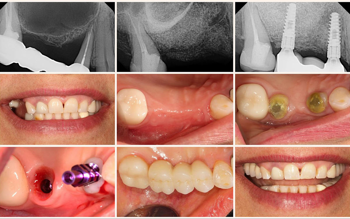 Smile Gallery Before And After Dental Cases By Dentist Glendale